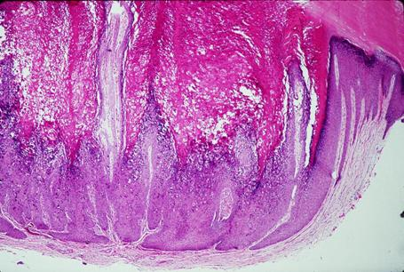 clear cell acanthoma #10